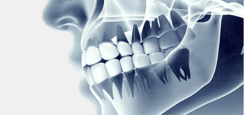 dental-radyoloji-ve-gorutuleme